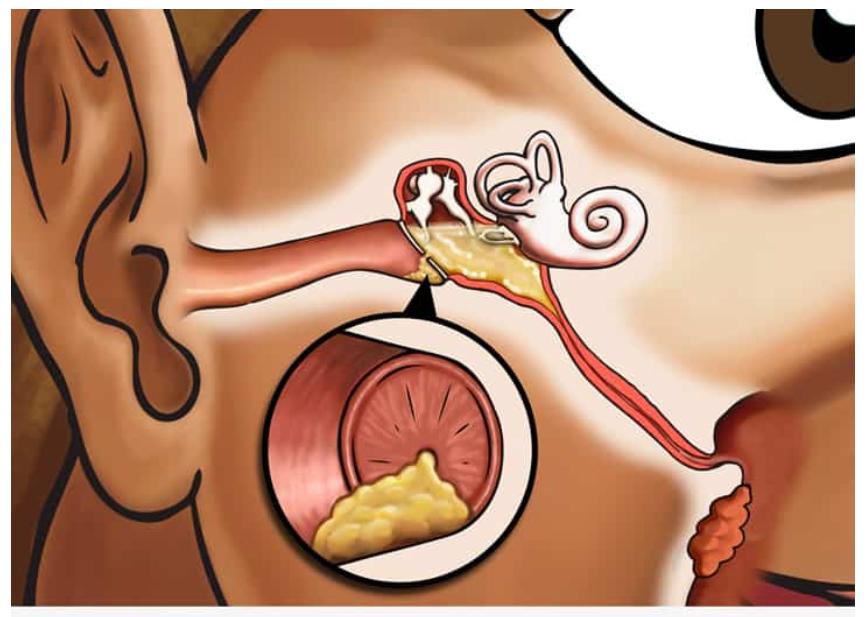 Viêm tai giữa nặng