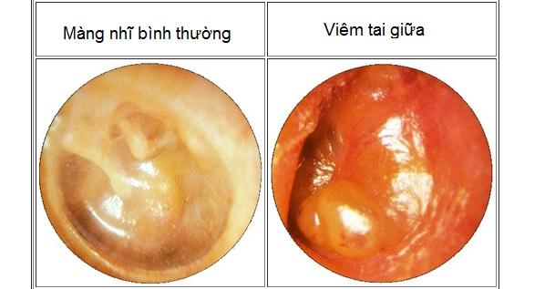 Dấu hiệu viêm tai giữa